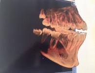 DVT I Digitale Volumen Tomographie